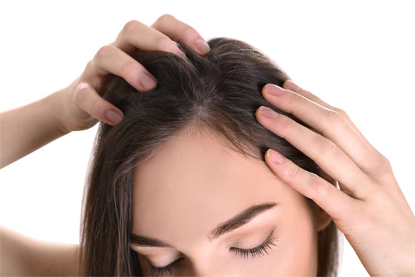 Nấm da đầu là gì?